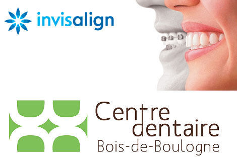 Side deal: Pay 395$ now and 3600$ during treatment for a complete Invisalign orthodontic treatment at the Centre dentaire Bois de Boulogne ($8100 value)